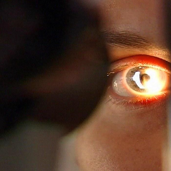 högt tryck i ögat
