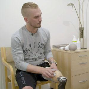 28-vuotiaan Tommin jalka jouduttiin amputoimaan syövän vuoksi.