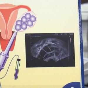Bild på hur proceduren för att plocka ut äggcellerna går till