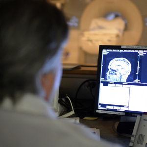 Aivoja kuvataan