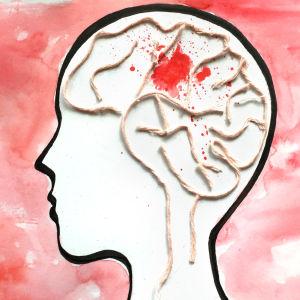 Piirros, pää jossa aivot villalangasta