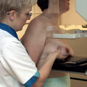 mammografi för bröstcancer