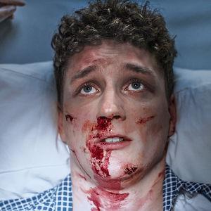 Mies makaa sairaalasängyssä kasvot ruhjeilla.