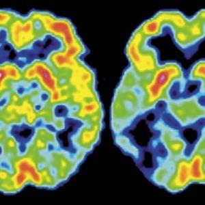 PET-kuva Alzheimerin tautia sairastavan aivoista