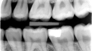 En Bitewing visar på till exempel hål mellan tänderna.