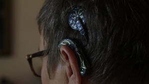 Implantatet hjälper Titi att höra.