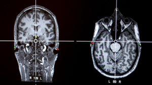 Kaksi röntgenkuvaa aivoista.