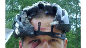 Kuvassa näkyy, kuinka pyöräilykypärä on repeytynyt pään etuosan kohdalta.