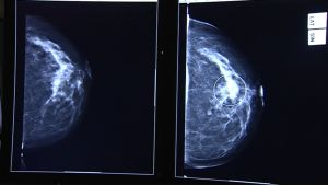 Mammografiakuva.