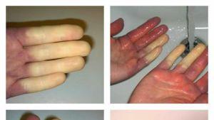 Piritta Paston sormiin auttaa vain lämmin vesi.