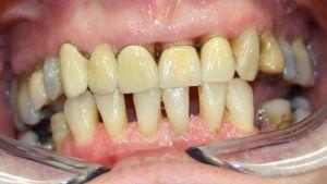 Tänder med gammal protes
