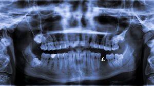 En panoroamröntgen av en mun, ett litet eurotecken syns i en av tandgluggarna.