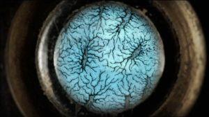 Vanha piirros syöpäsoluista mikroskoopissa