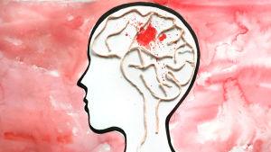 Piirretty kuva. Ihmispää profiilissa, aivot näkyvissä. Kuvailee aivoinfarktia.