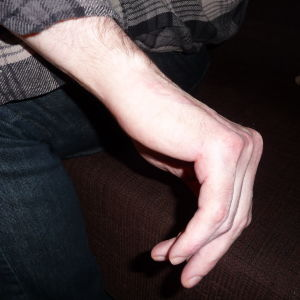 Tony Axberg visar sin handled som krossades. En nervskada har lett till svår värk dygnet runt