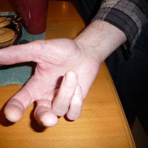 Tony Axberg visar sin handled som krossades. En nervskada har lett till svår värk dygnet runt, ringfingret och lillfingret går inte att räta ut