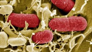 ESBL-bakterier i mikroskop