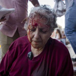 Ana Quiroz, aktivist i nätverket Kvinnor mot våld, blöder i samband med de första gatuprotesterna på onsdagen.