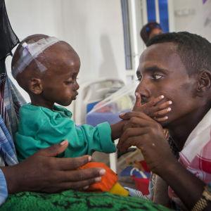 15 månader gamla Abdifatax har hämtats till sjukhus av sina föräldrar.