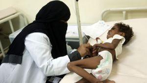 Ett undernärt barn behandlas på ett sjukhus i den jemenitiska hamnstaden Hodeidah den 5 november 2017.