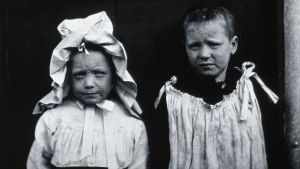 Två barn som har haft smittkopporna.