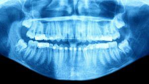 Rönrgenbild av tänder.