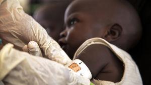 En sju månader gammal pojke undersöks vid en Unicef-klinik i Maiduguri 8.12.2016