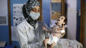 Ett allvarligt undernärt barn på en klinik i staden Hamouria, östra Ghouta i Syrien. Bilden tagen 21.10.2017