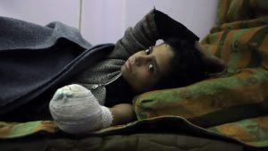 Den syriska pojken Khaled al-Ghorani vårdades på en klinik i östra Ghouta den 1 mars. Hans hand amputerades efter att han kommit till skada i ett flyganfall.