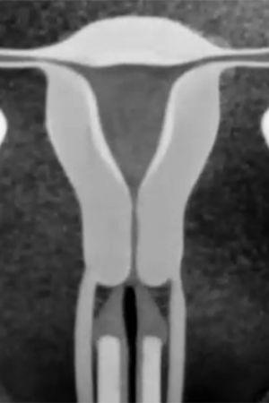 Äggcell befruktas, Yle 1969