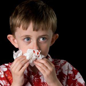 Näsblod kan vara skrämmande om man är liten. Färsök lugna barnet