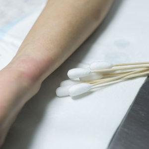 Kosmetiikan säilöntäaineet lisäävät allergiariskiä.