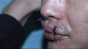 En av fångarna i Bishkek  fängelse har sytt ihop sina läppar i prtest mot usla förhållanden