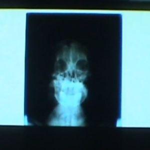 Röntgenkuva päästä.