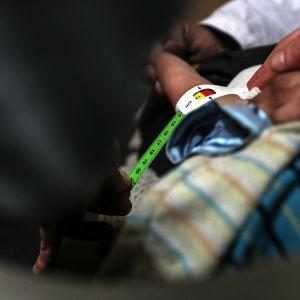 Maailman terveysjärjestön (WHO) lääkäri tutkii aliravitsemuksesta kärsivää lasta al-Marj-sairaalassa, al-Shaffuniya -kaupungissa, Syyriassa, 14. helmikuuta 2018.