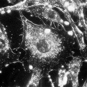 Mikroskooppikuva syöpäsolusta.