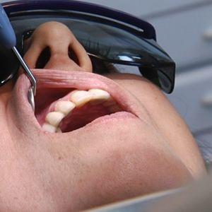 Asiakas hammaslääkärin käsittelyssä.