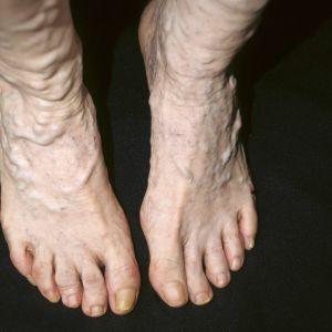Suonikohjuja jaloissa