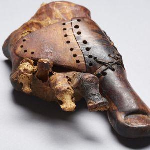 Varvasproteesi kiinnitettynä jalan luihin.