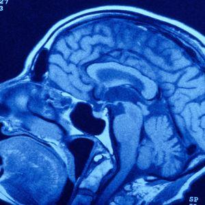 Röntgenkuva aivoista