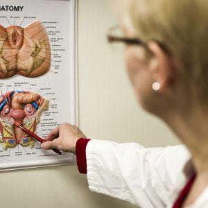 Lääkäri osoittaa taululta kuvaa naisen sukuelimistä.