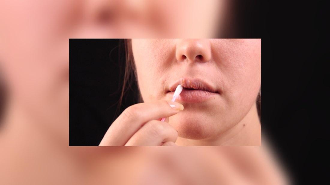när slutar herpes smitta
