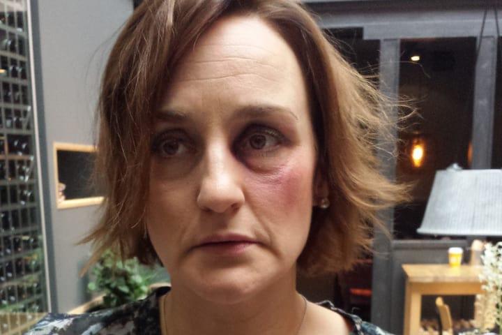 rakastunut nainen väkivaltainen nainen