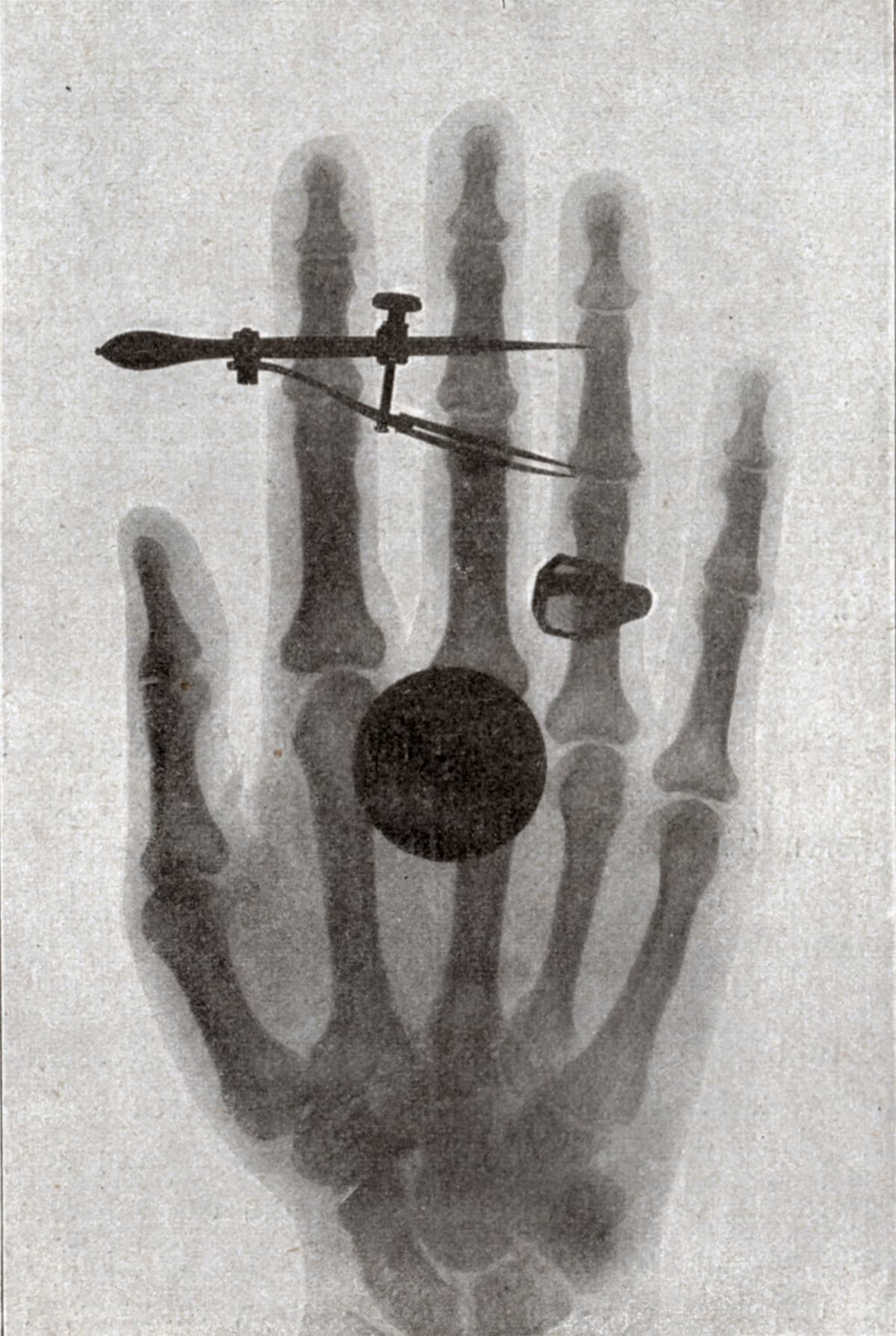 Röntgen Säteily