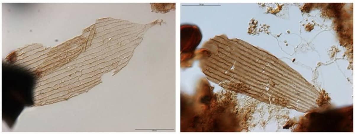 Perhosten siipien ja ruumiiden hauraita suomuja mikroskoppikuvissa.