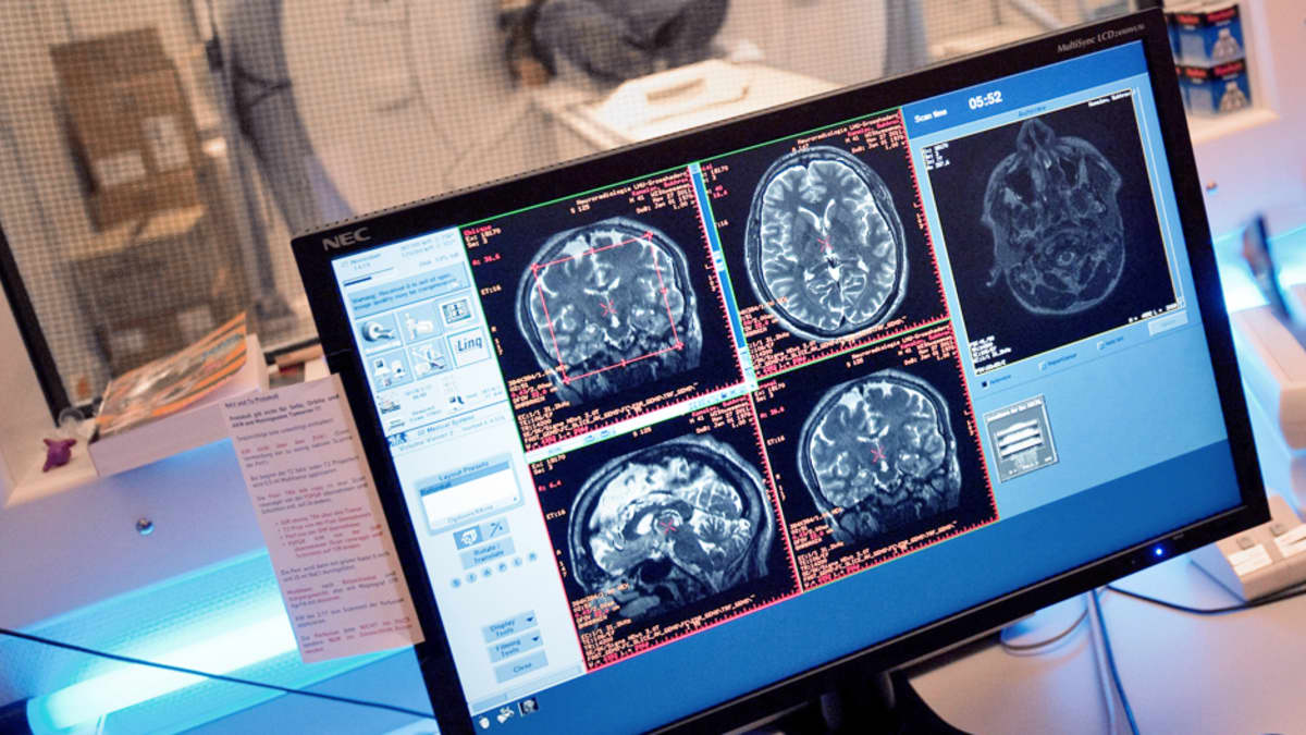 Magneettikuvia ihmisen aivoista.