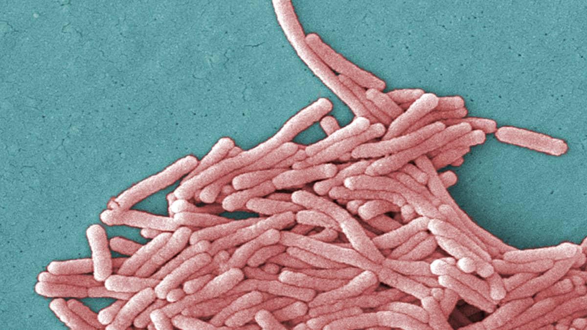Elektronimikroskooppilla otettu 8000-kertainen suurennus Legionella Pneumophila -bakteerista.