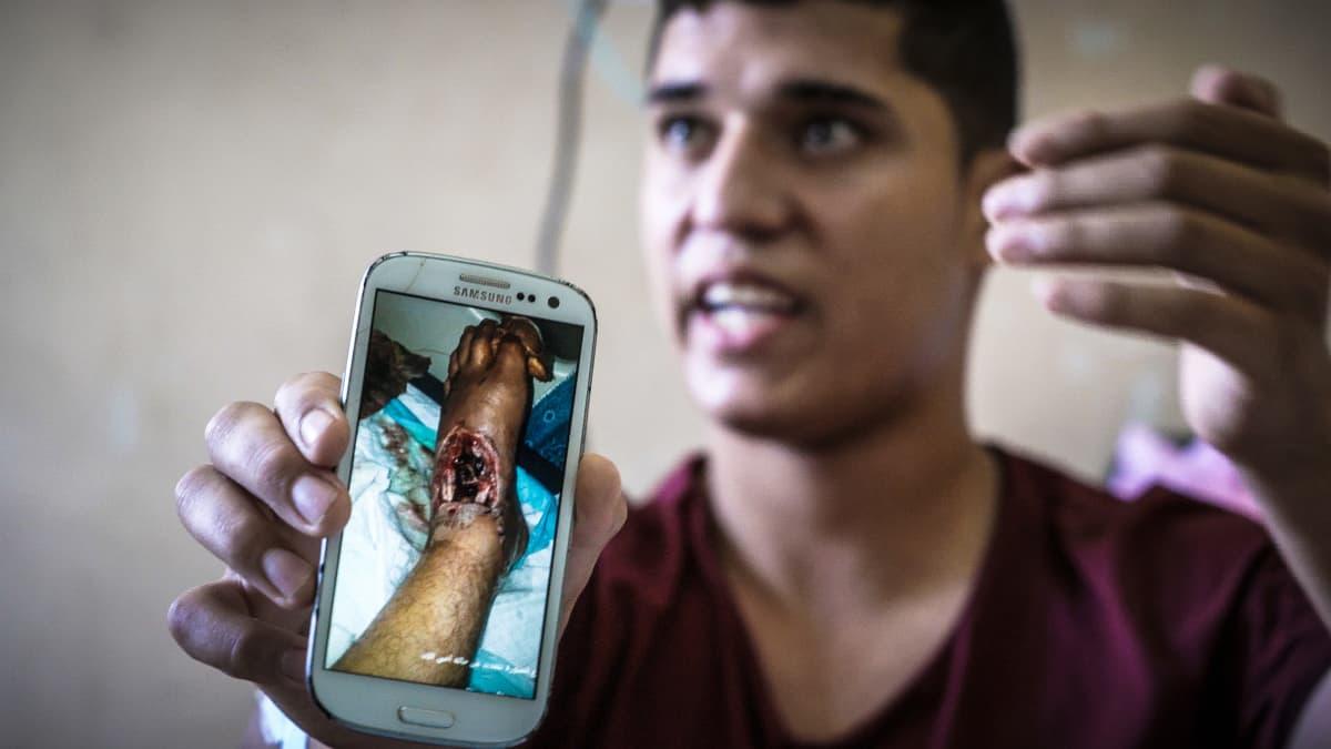 Israelin armeijan luoti tuhosi Ahmadin nilkan ja unelman jalkapallourasta. Hän on kuukausien ajan odottanut lupaa siirtyä Gazan ulkopuolelle hoitoon, jotta jalka voitaisiin pelastaa amputaatiolta.
