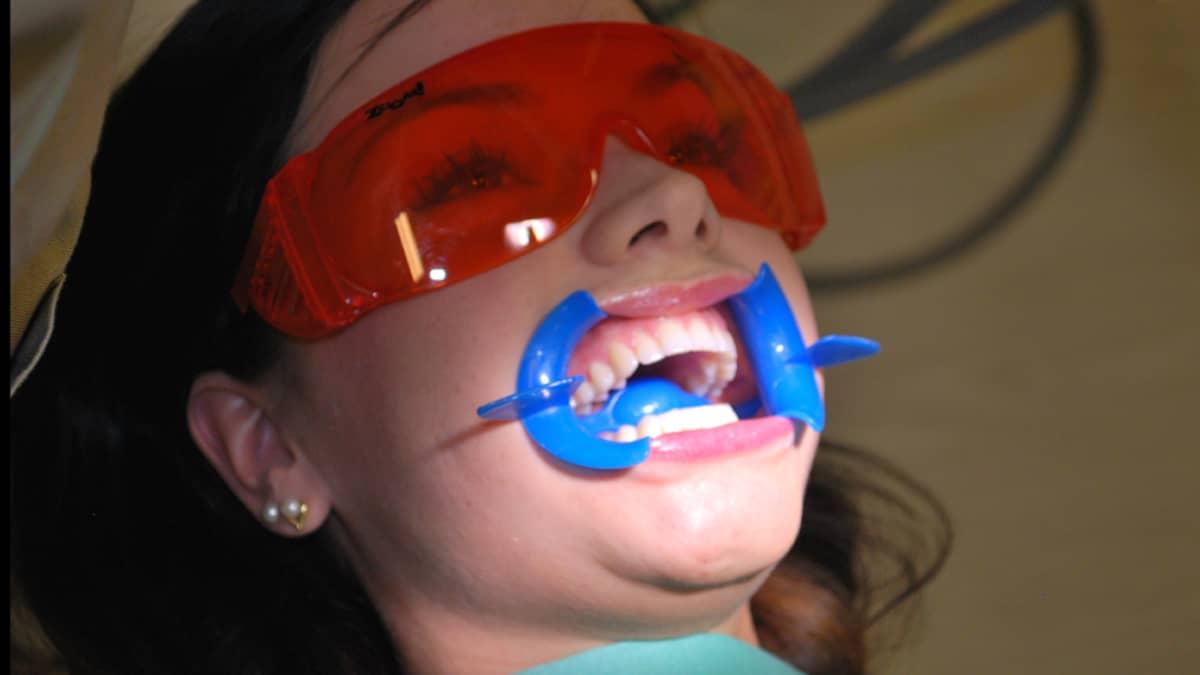 Missifinalisti hampaiden valkaisussa.