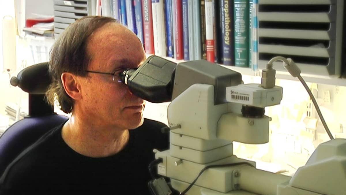 Huslabin osastonjohtajan Anders Paetaun mukaan äärimmäisen harvinainen Creutzfeldt Jakobin tauti on esiintynyt yllättävällä tavalla ennenkin.